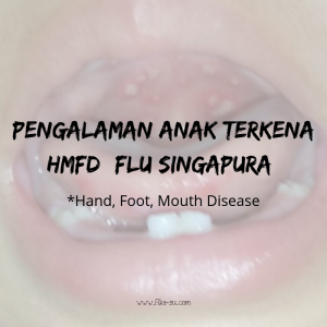 flu singapura pada anak